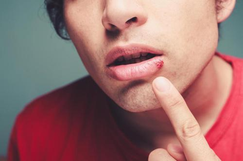 Are Cold Sores Contagious And How To Deal With Them?